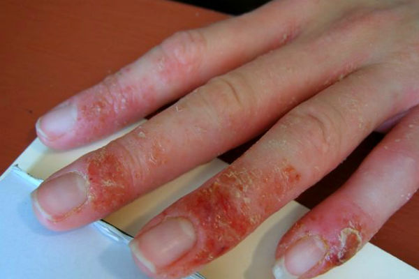 Аллергия на гель для наращивания ногтей у мастера — Аллергия